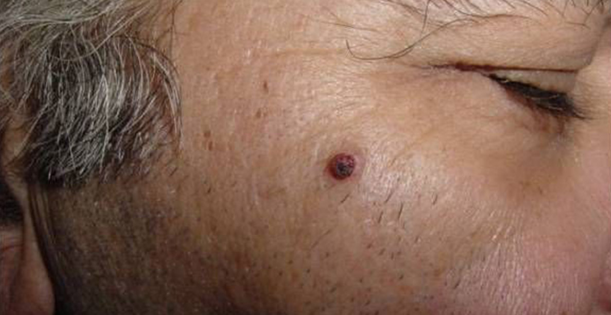 Hemangioma - before treatment