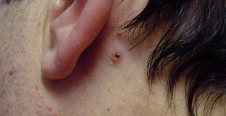 Skin tag lesion - before treatment with Freezpen