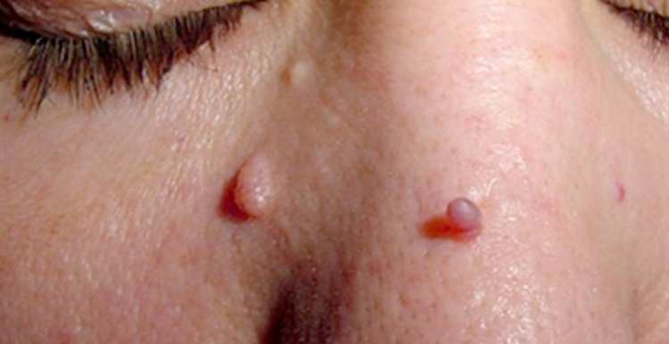 Skin Tag - before treatment with Freezpen