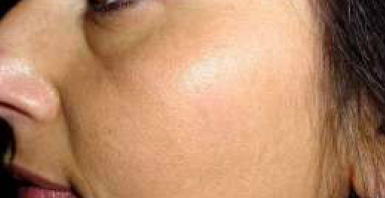 Solar Lentigo - after treatment with Freezpen