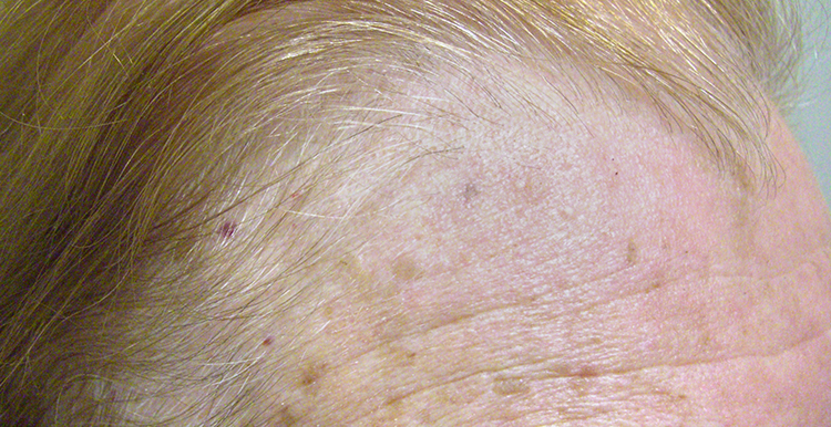 Actinic Keratosis - after treatment with Freezpen