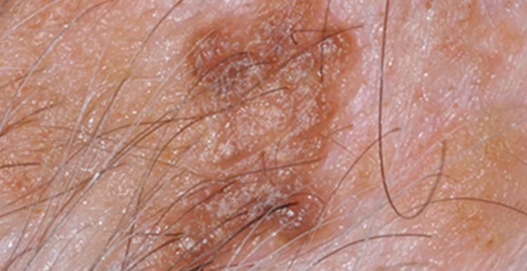 Seborrheic Keratosis lesion - before treatment with Freezpen