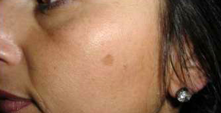 Solar Lentigo - before treatment with Freezpen